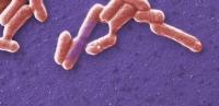 Cada año mueren en el mundo varias decenas de personas a causa de la infección por cepas verotoxigénicas de la bacteria Escherichia coli