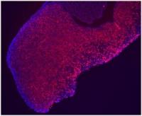 Hipófisis de ratón con las células somatotropas productoras de hormona del crecimiento teñidas de rojo